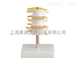 正常腰椎组合 (三节)模型