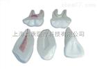 牙解剖模型(3只/套)
