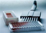 兔子β血小板球蛋白/β血栓环蛋白检测要求