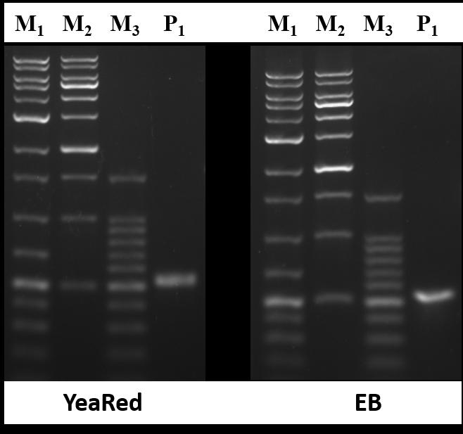 最新的成人电影网址谁告�y.*�eb_核酸染料yeared和eb进行琼脂糖凝胶电泳的效果对比图